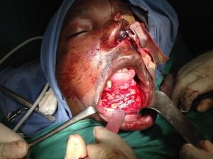 Traumatismo con fractura mandibular, fractura de las órbitas y del maxilar superior.